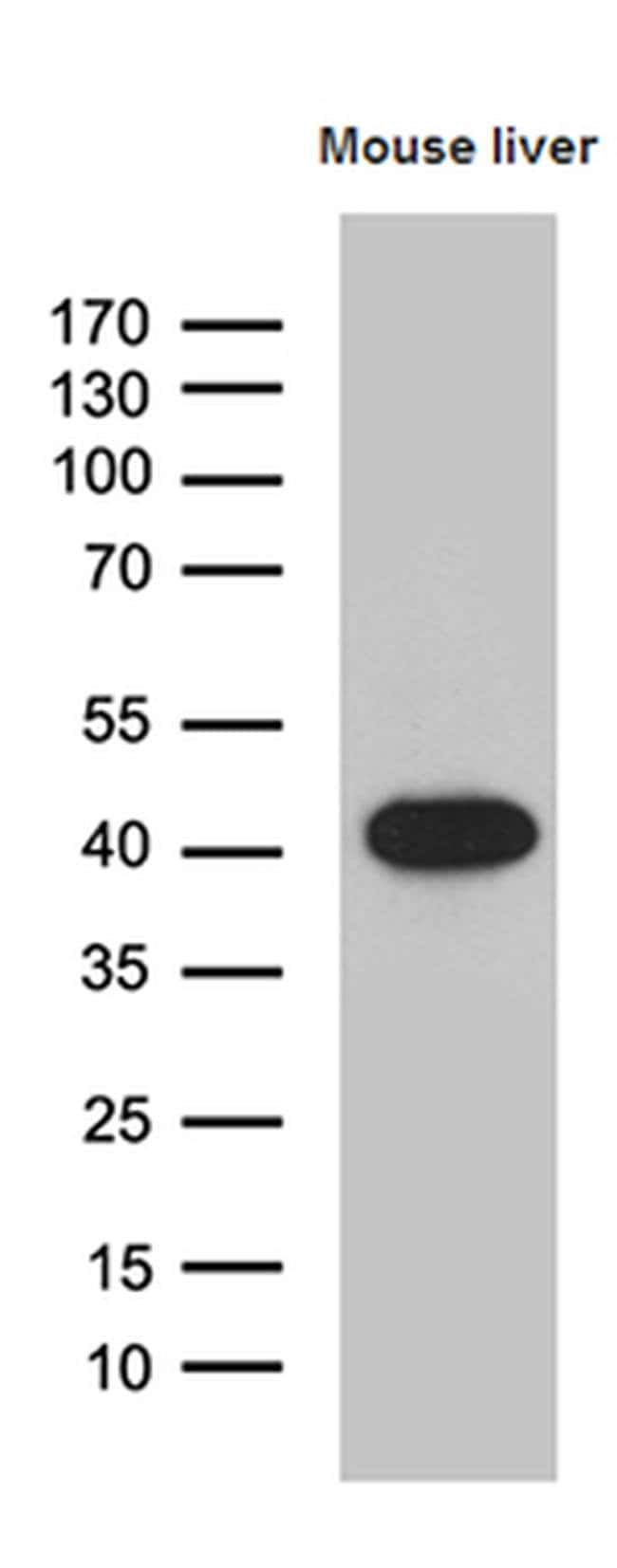 LIMS2 Mouse anti-Human, Mouse, Clone: OTI5H8, Invitrogen 100 µL; Unconjugated