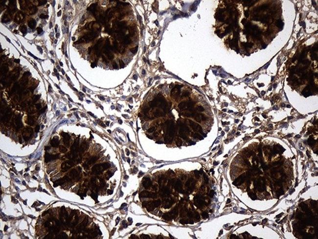 TFF3 Mouse anti-Human, Clone: OTI5B2, Invitrogen 100 µL; Unconjugated