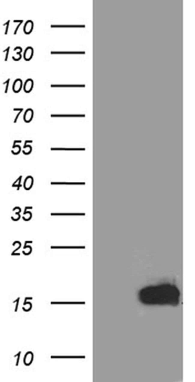 TFF3 Mouse anti-Human, Clone: OTI4D10, Invitrogen 100 µL; Unconjugated