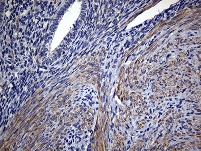 FAM151B Mouse anti-Human, Clone: OTI1F5, Invitrogen 100 µL; Unconjugated