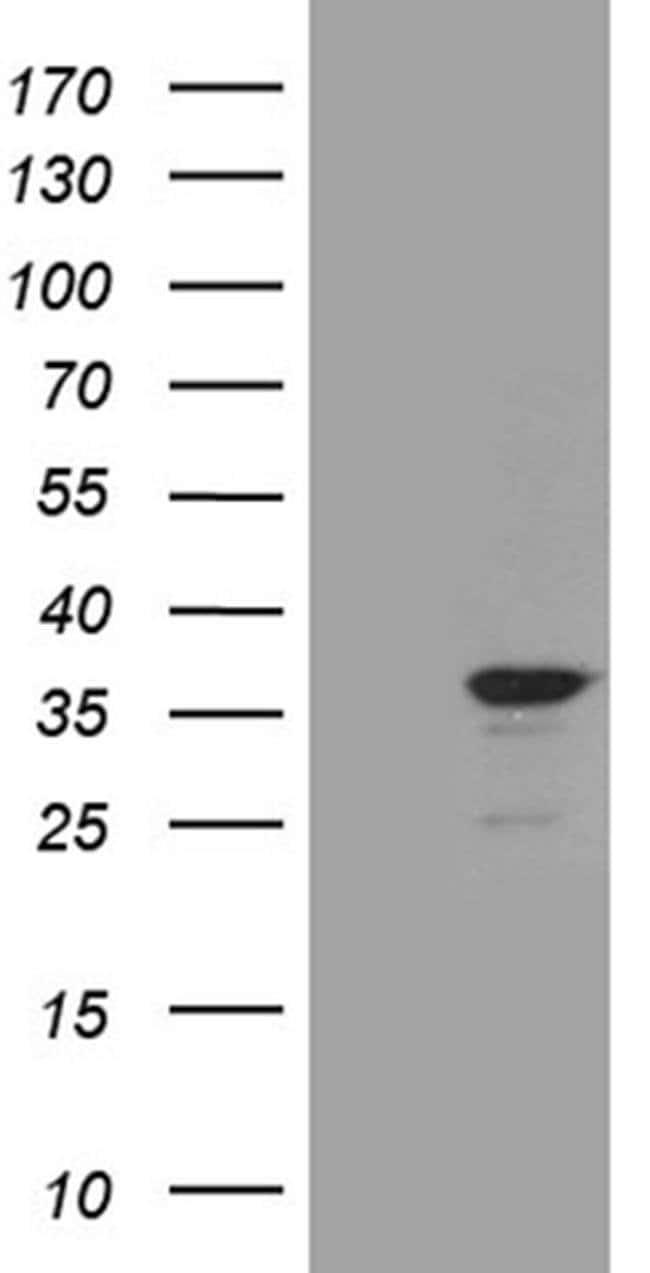 C14orf80 Mouse anti-Human, Clone: OTI1H5, Invitrogen 100 µL; Unconjugated
