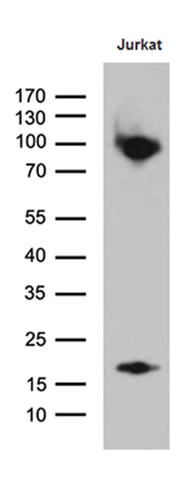 SH3BP1 Mouse anti-Human, Clone: OTI1C9, Invitrogen 100 µL; Unconjugated