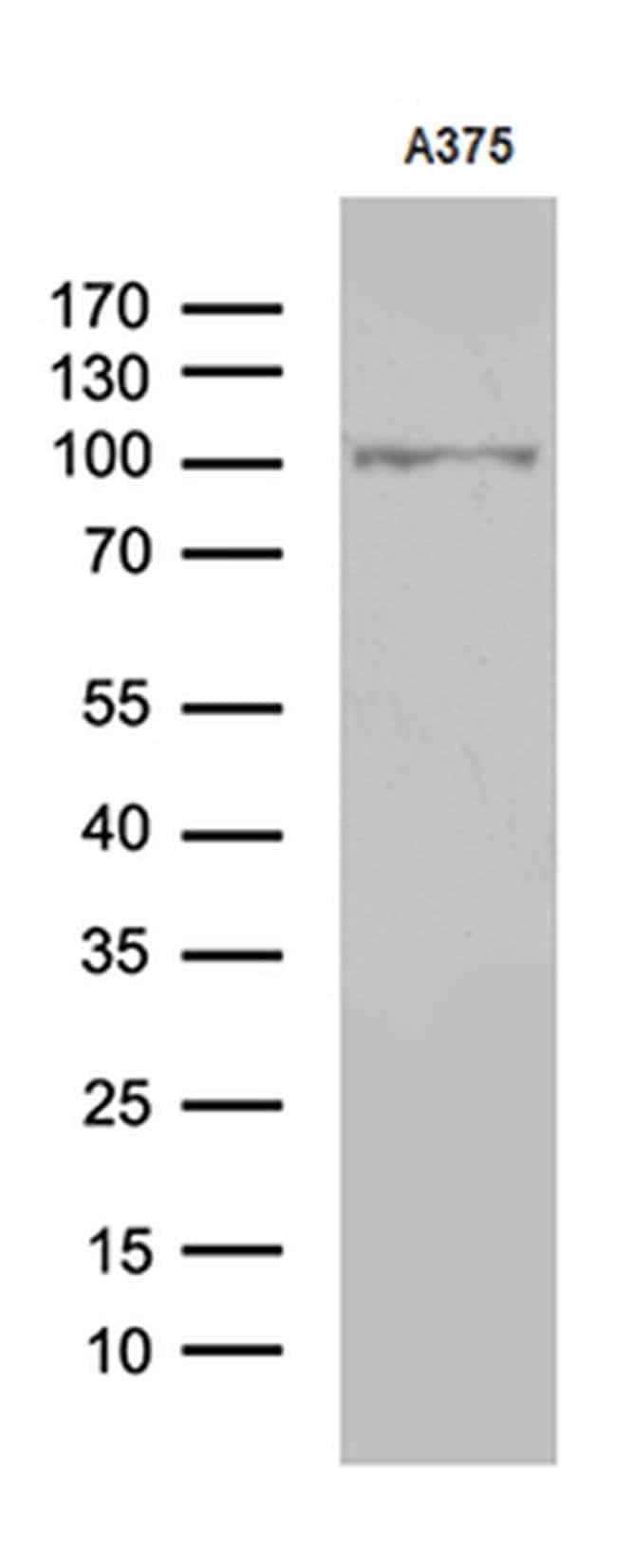 ALS2CR11 Mouse anti-Human, Clone: OTI7A8, Invitrogen 100 µL; Unconjugated