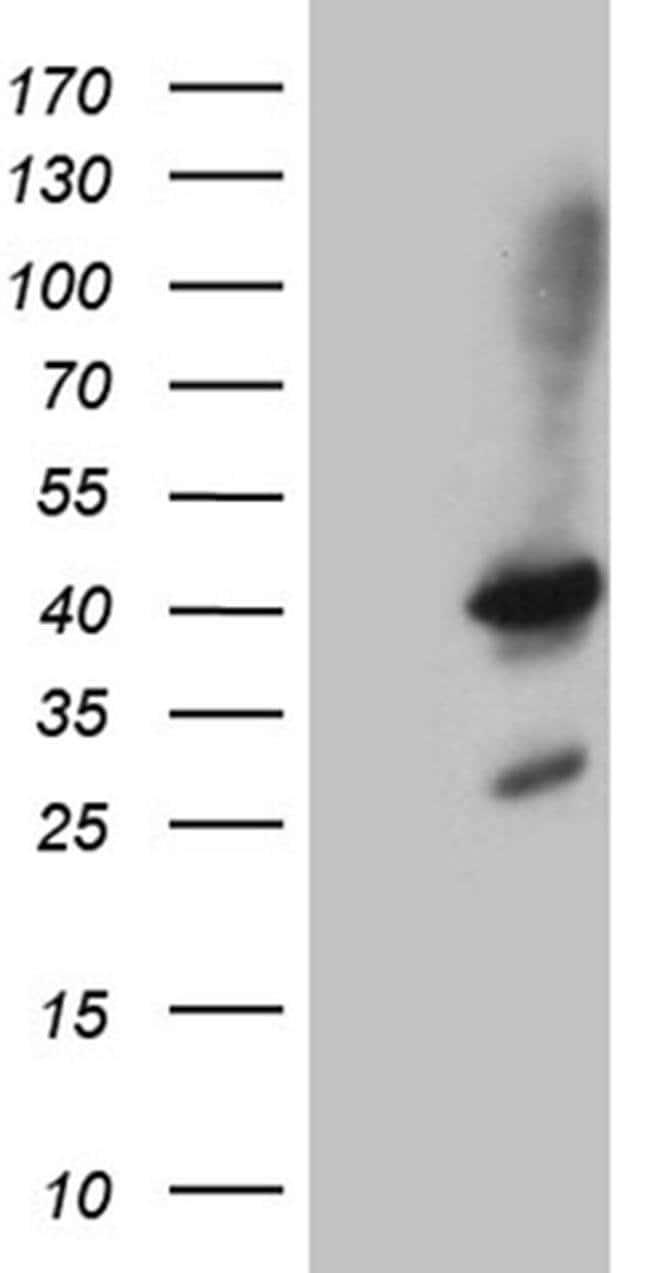 SHARPIN Mouse anti-Human, Clone: OTI1F4, Invitrogen 100 µL; Unconjugated