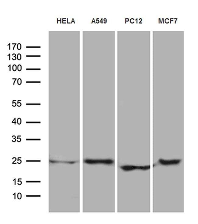 eIF4E3 Mouse anti-Human, Rat, Clone: OTI2B9, Invitrogen 100 µL; Unconjugated