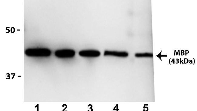Maltose Binding Protein Mouse anti-Tag, Clone: MBP61R, Invitrogen 100 µg;