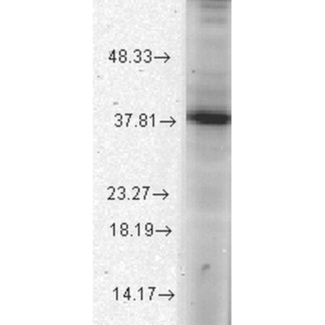 ATAD1 Mouse anti-Human, Mouse, Rat, Clone: S125-10, Invitrogen 100 µg;