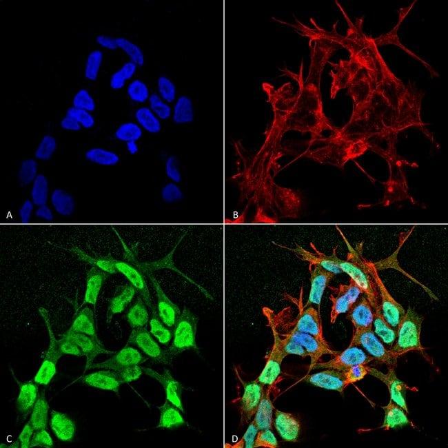 SCN3B Mouse anti-Human, Mouse, Rat, Clone: S396-29, Invitrogen 100 µg;