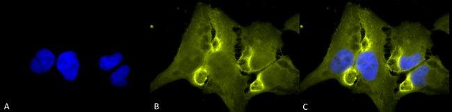 HIF1AN Mouse anti-Human, Mouse, Clone: FIH 162c, Invitrogen 100 µg;