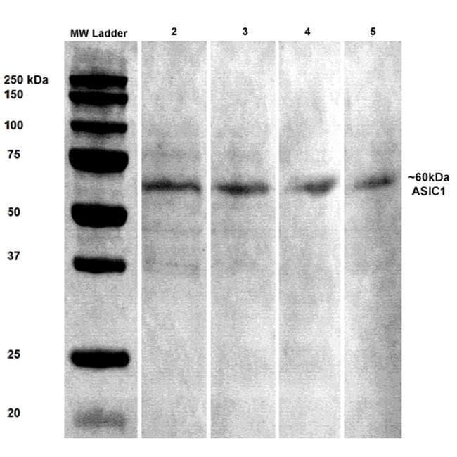 ASIC1 Mouse anti-Mouse, Rat, Clone: S271-44, Invitrogen 100 µg; Unconjugated