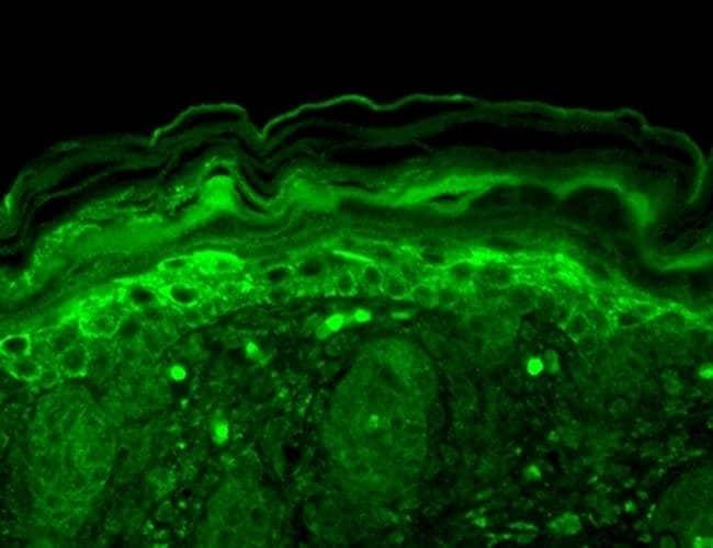 KCNMB2 Mouse anti-Human, Mouse, Rat, Clone: S53-32, Invitrogen 100 µg;