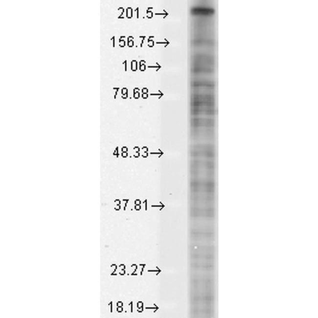 SCN10A Mouse anti-Human, Mouse, Rat, Clone: S134-12, Invitrogen 100 µg;