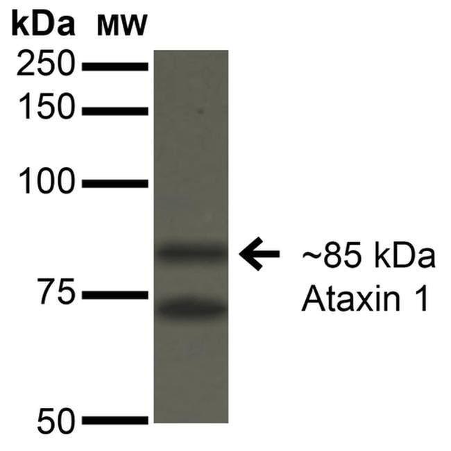 Ataxin 1 Mouse anti-Human, Mouse, Rat, Clone: S76-8, Invitrogen 100 µg;