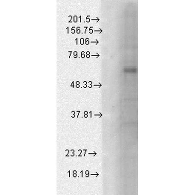 GABRB1 Mouse anti-Human, Mouse, Rat, Clone: S96-55, Invitrogen 100 µg;