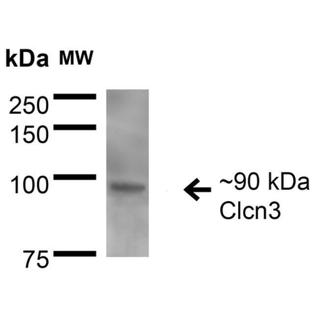 CLCN3 Mouse anti-Human, Mouse, Rat, Clone: S258-5, Invitrogen 100 µg;