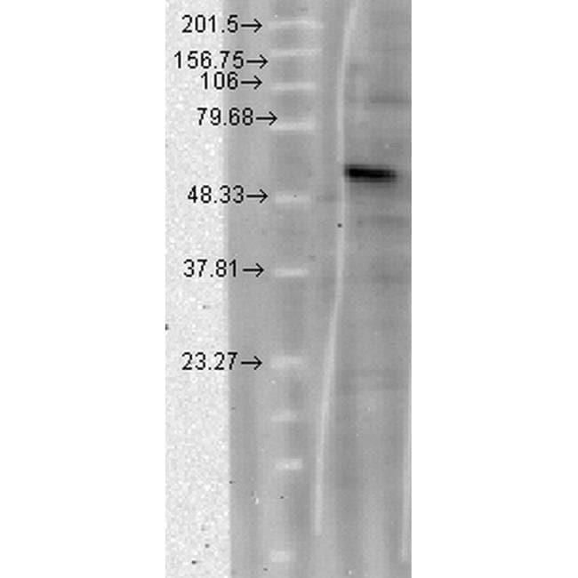 Calcium Channel beta-4 Mouse anti-Human, Mouse, Rat, Clone: S10-7, Invitrogen