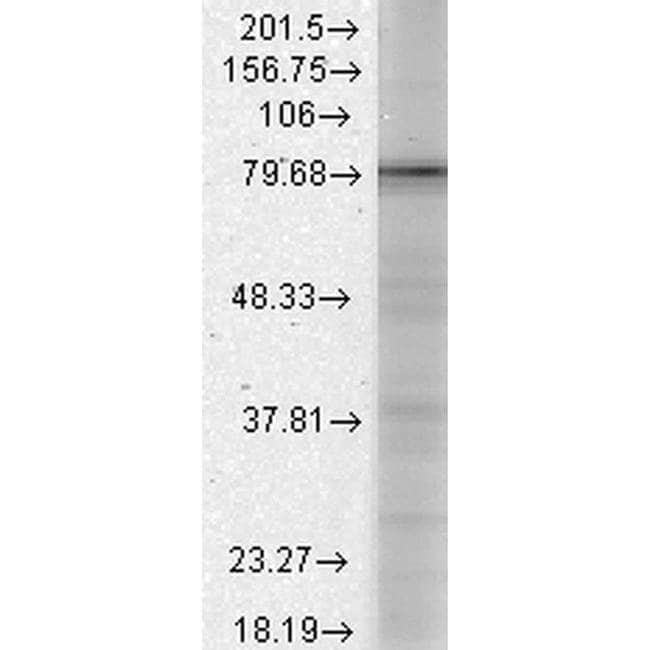 CACNB1 Mouse anti-Human, Mouse, Rat, Clone: S7-18, Invitrogen 100 µg;