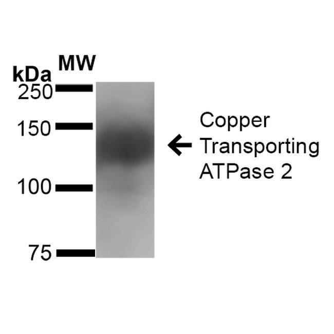 ATP7B Mouse anti-Human, Mouse, Rat, Clone: S62-29, Invitrogen 100 µg;