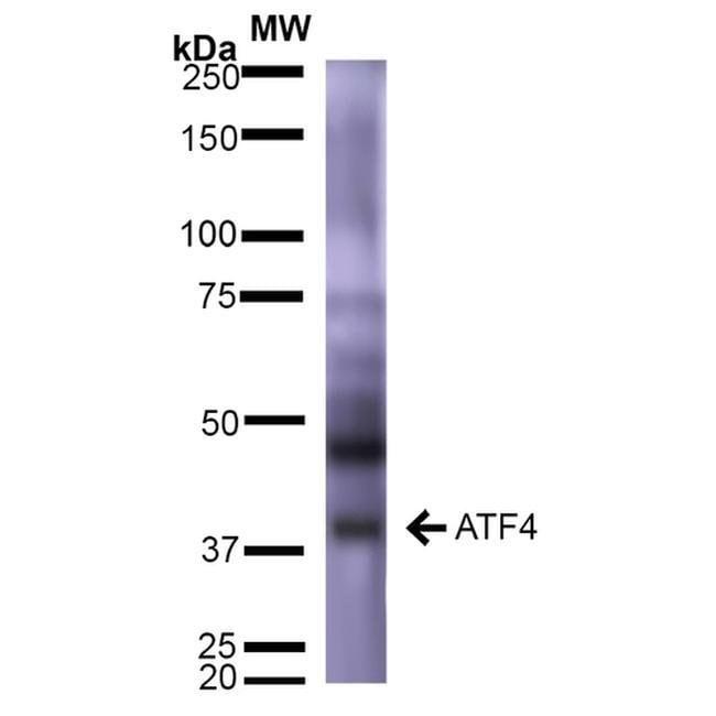 ATF4 Mouse anti-Human, Mouse, Rat, Clone: S360A-24, Invitrogen 100 µg;