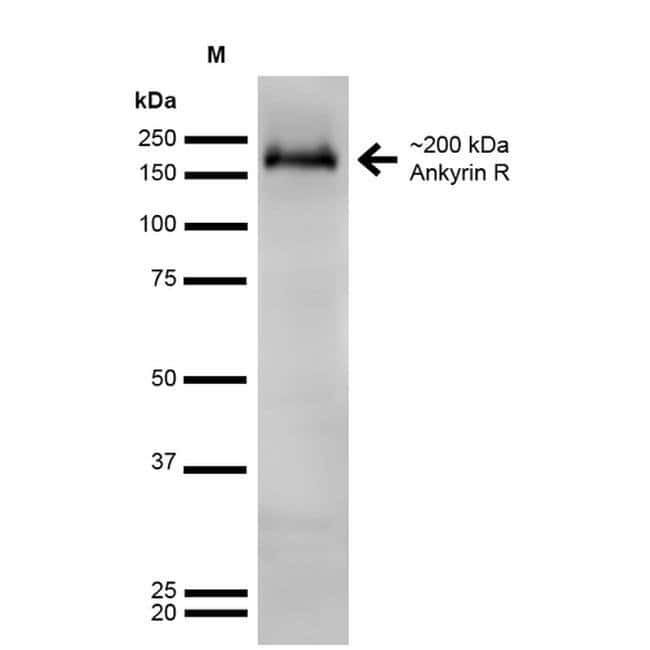 Ankyrin 1 Mouse anti-Human, Mouse, Rat, Clone: S388A-10, Invitrogen 100