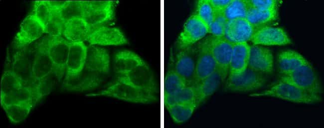 ATP6V1A Mouse anti-Human, Clone: GT811, Invitrogen 100 µL; Unconjugated