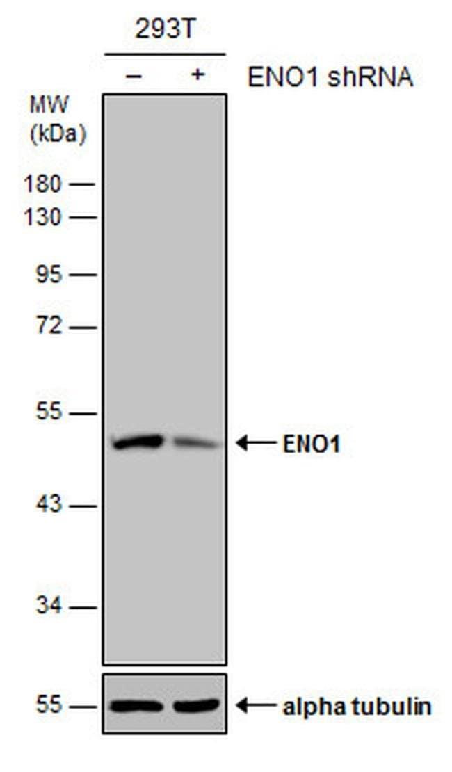 ENO1 Mouse anti-Human, Clone: GT2217, Invitrogen 100 µL; Unconjugated