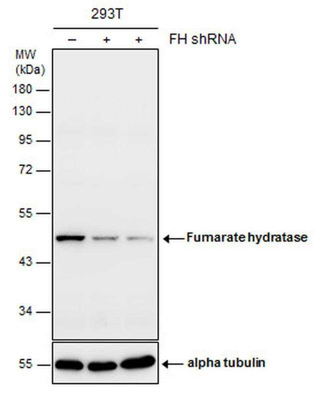 Fumarase Mouse anti-Human, Mouse, Rat, Clone: GT548, Invitrogen 100 µL;