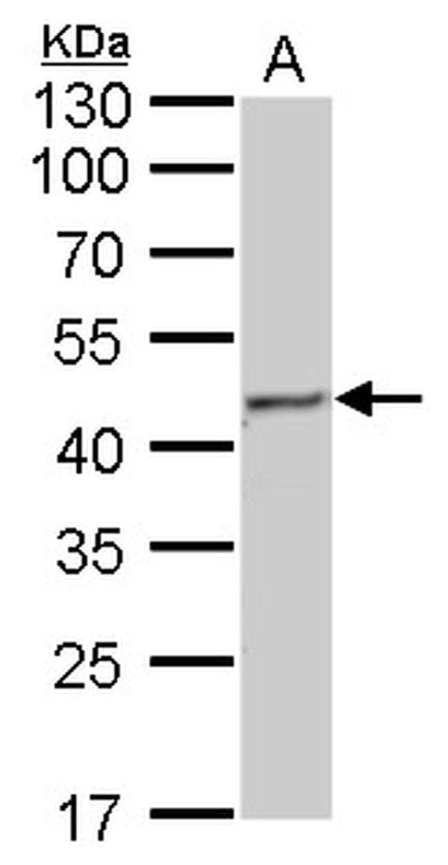 Fumarase Mouse anti-Human, Mouse, Rat, Clone: GT7612, Invitrogen 100 µL;