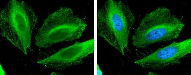 Filamin B Mouse anti-Human, Rat, Clone: GT387, Invitrogen 100 µL;