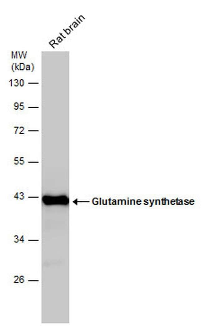Glutamine Synthetase Mouse anti-Human, Mouse, Rat, Clone: GT7711, Invitrogen