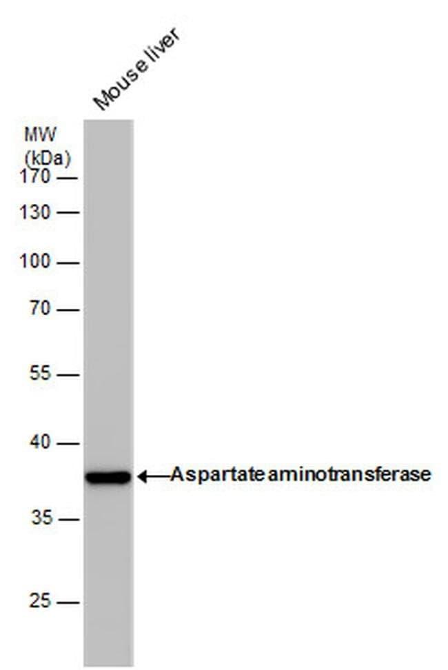 GOT1 Mouse anti-Human, Mouse, Clone: GT1255, Invitrogen 100 µL; Unconjugated