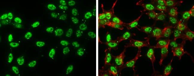 Phospho-c-Jun (Ser63) Mouse anti-Human, Rat, Clone: GT653, Invitrogen 100