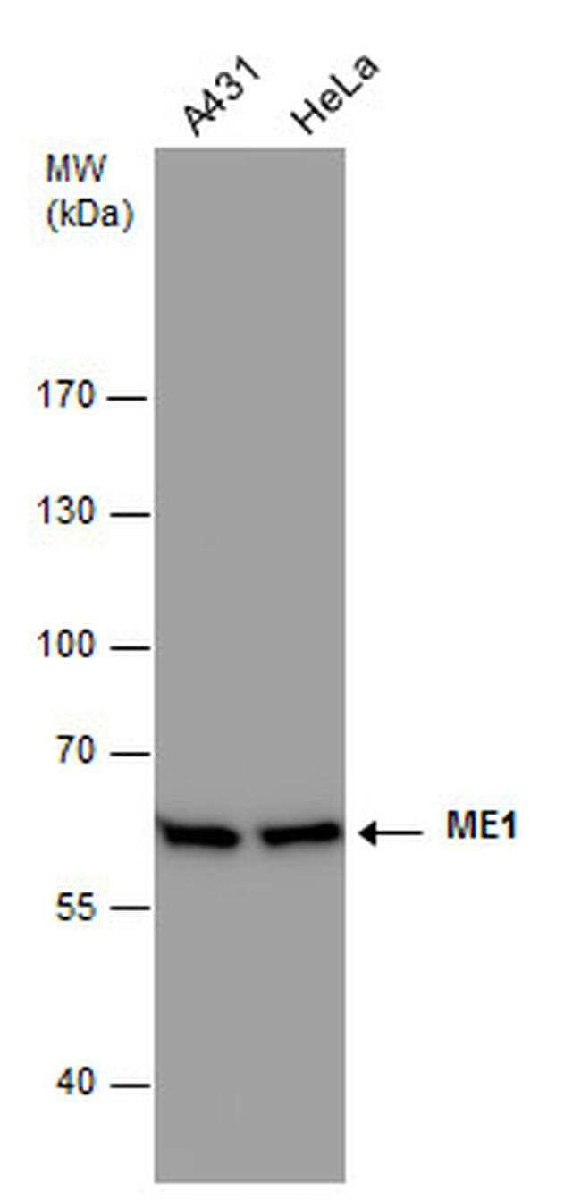 ME1 Mouse anti-Human, Mouse, Clone: GT979, Invitrogen 100 µL; Unconjugated