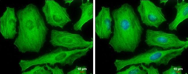 Phospho-MYH9 (Ser1943) Mouse anti-Human, Clone: GT144, Invitrogen 100 µL;