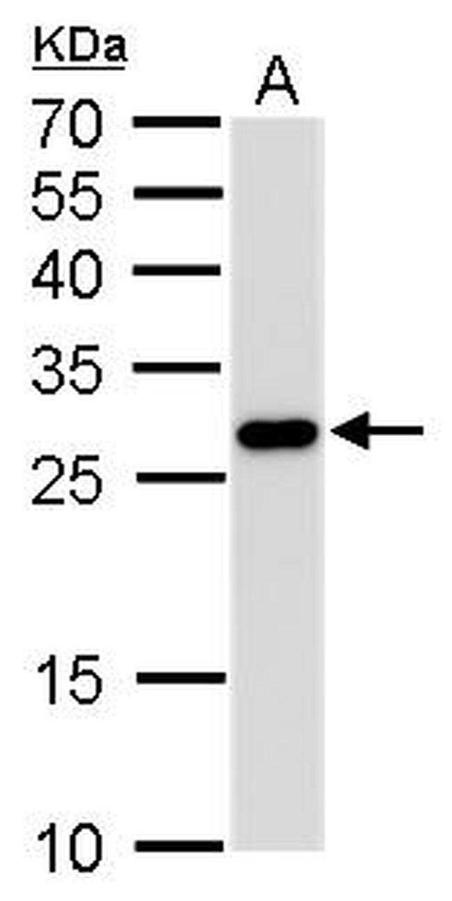 PGAM1 Mouse anti-Human, Mouse, Rat, Clone: GT256, Invitrogen 100 µL;