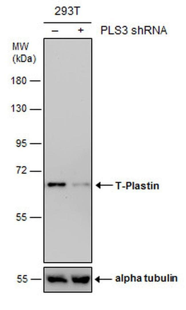 PLS3 Mouse anti-Human, Clone: GT236, Invitrogen 100 µL; Unconjugated