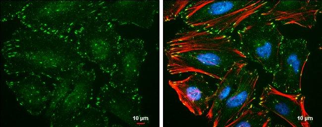 Phospho-Paxillin (Tyr118) Mouse anti-Human, Clone: GT162, Invitrogen 100
