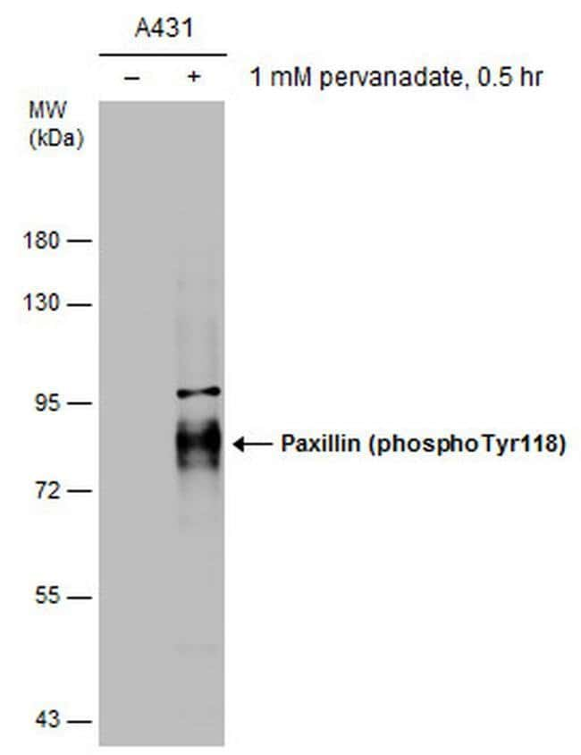 Phospho-Paxillin (Tyr118) Mouse anti-Human, Clone: GT712, Invitrogen 100