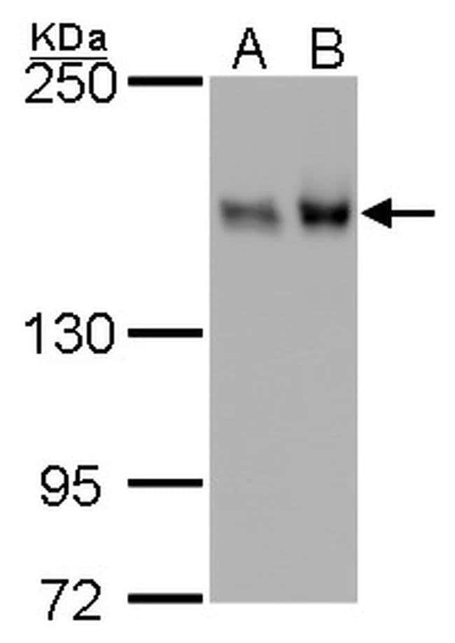 ROCK1 Mouse anti-Human, Mouse, Rat, Clone: GT261, Invitrogen 100 µL;
