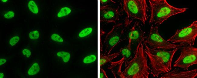 SP1 Mouse anti-Human, Clone: GT2574, Invitrogen 100 µL; Unconjugated