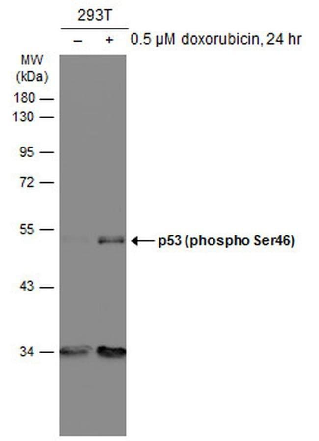 Phospho-p53 (Ser46) Mouse anti-Human, Clone: GT1018, Invitrogen 100 µL;