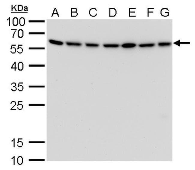 ATG12 Mouse anti-Human, Mouse, Clone: GT166, Invitrogen 100 µL; Unconjugated