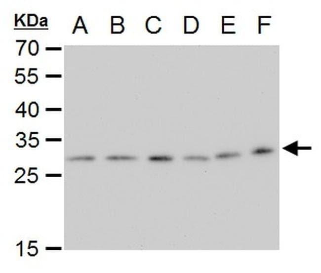 ETHE1 Mouse anti-Human, Mouse, Rat, Clone: GT1621, Invitrogen 100 µL;
