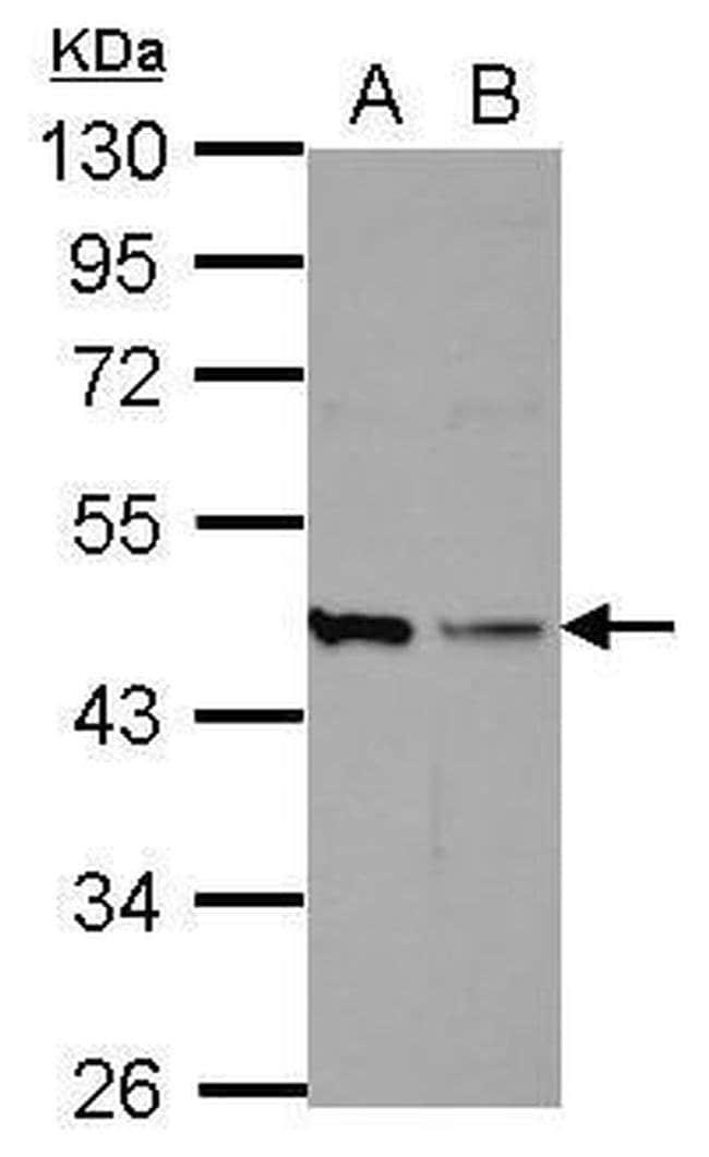 HICE1 Mouse anti-Human, Clone: 15A2-35, Invitrogen 100 µL; Unconjugated