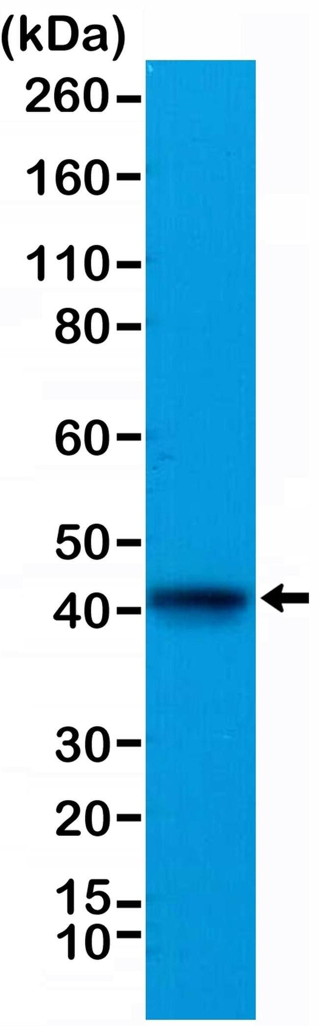 ACTC1 Rabbit anti-Bovine, Human, Mouse, Rat, Invitrogen 100 µL; Unconjugated