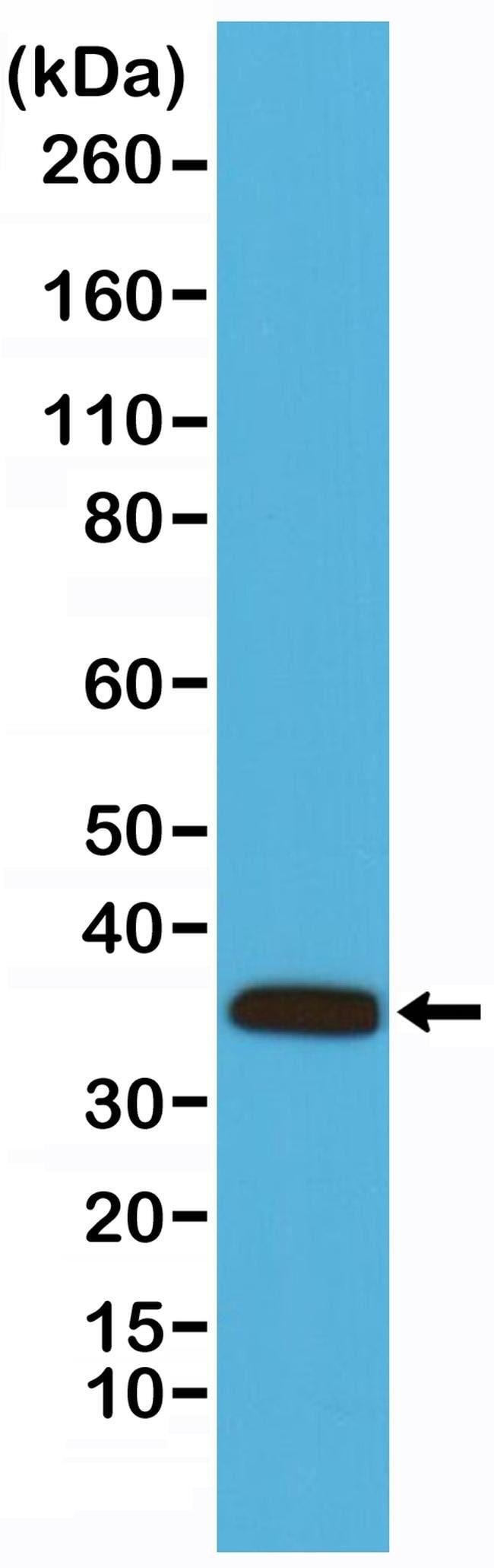 Calponin 1 Rabbit anti-Human, Mouse, Invitrogen 100 µL; Unconjugated