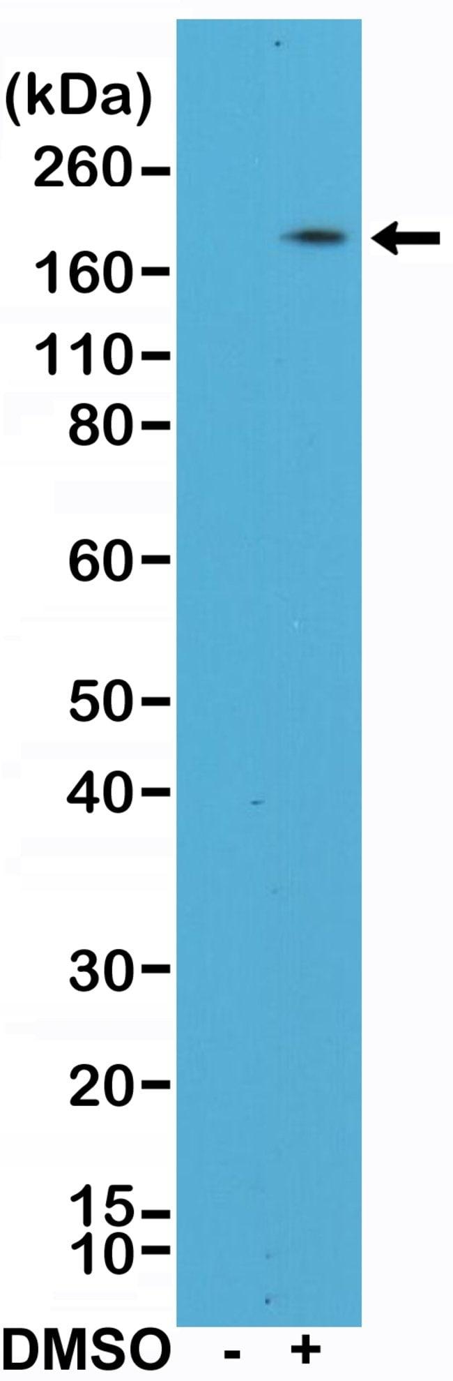 CD11b Rabbit anti-Human, Invitrogen 100 µL; Unconjugated