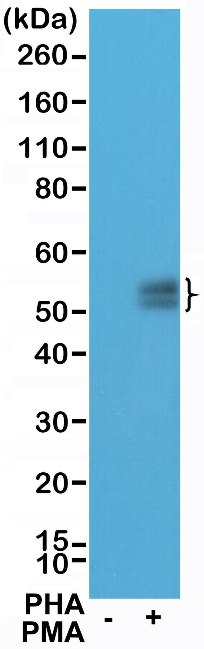 PD-1 (CD279) Rabbit anti-Human, Invitrogen 100 µL; Unconjugated