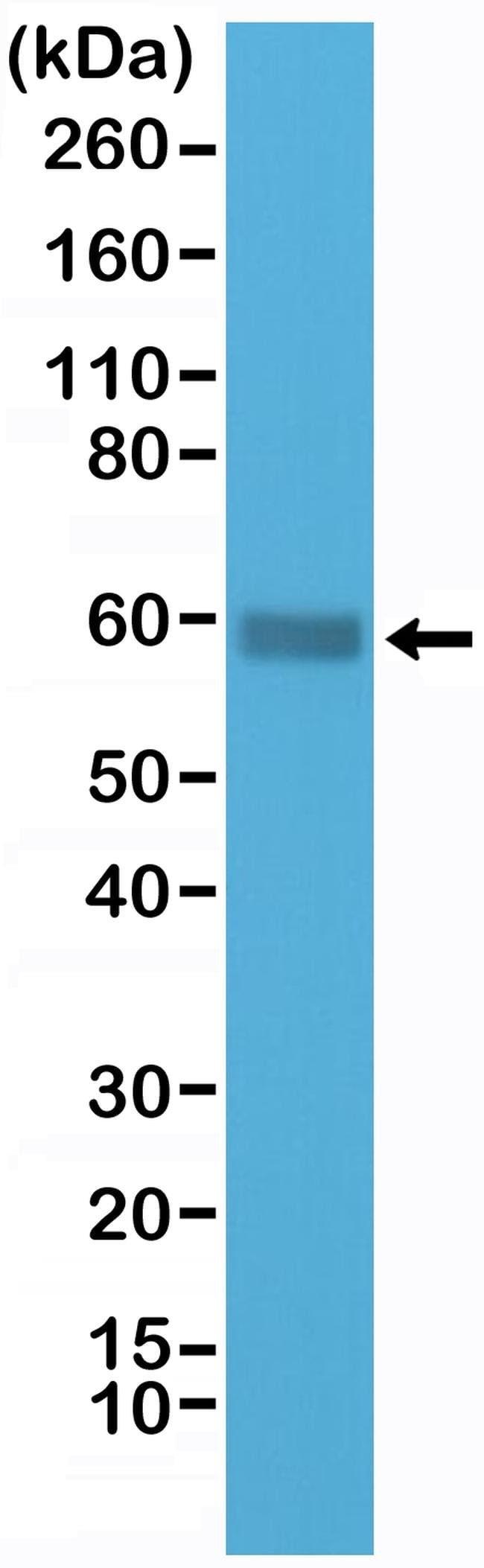 CD5 Rabbit anti-Human, Invitrogen 100 µL; Unconjugated