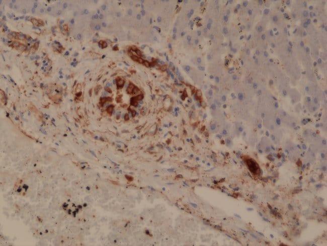 GSTP1 Rabbit anti-Human, Invitrogen 100 µL; Unconjugated
